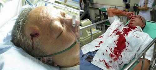 sonthi_hospital_1